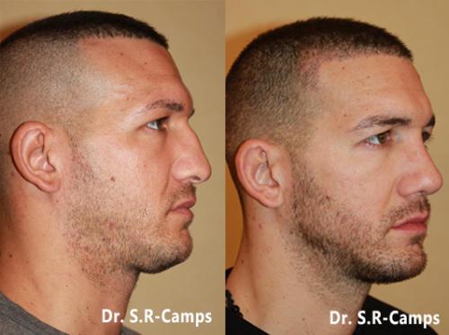rinoplastia hombres valencia doctor camps