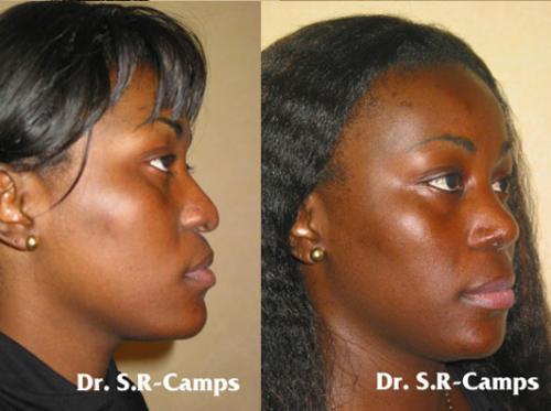 rinoplastia valencia doctor camps nariz ancha
