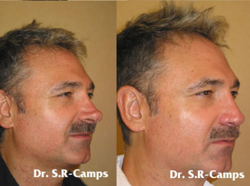 rinoplastia valencia hombres doctor camps
