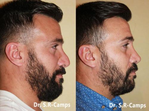 rinoplastia valencia nariz ancha doctor camps