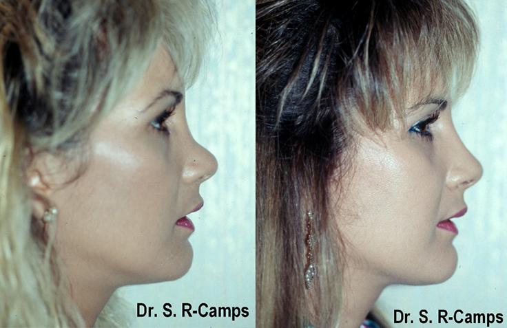 rinoaumentar antes y despues1