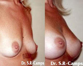 Mamoplastia de Aumento Postoperatorio y Recuperacion|Clínica Rodríguez-Camps